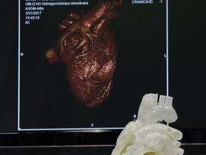 Нижегородские ученые создали биочип для экспресс-диагностики онкологических заболеваний